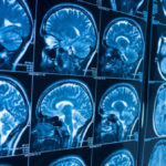 Electrodes Show a Glimpse of Recollections Rising During a Brain